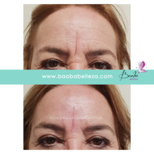 eliminar arrugas botox natural madrid