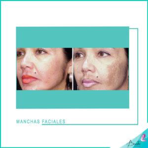 manchas faciales 2