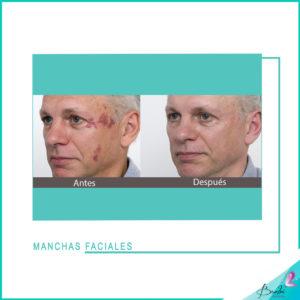 manchas faciales 6