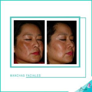 manchas faciales 8